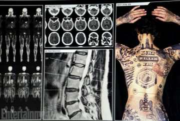 jane tattoos x-rays